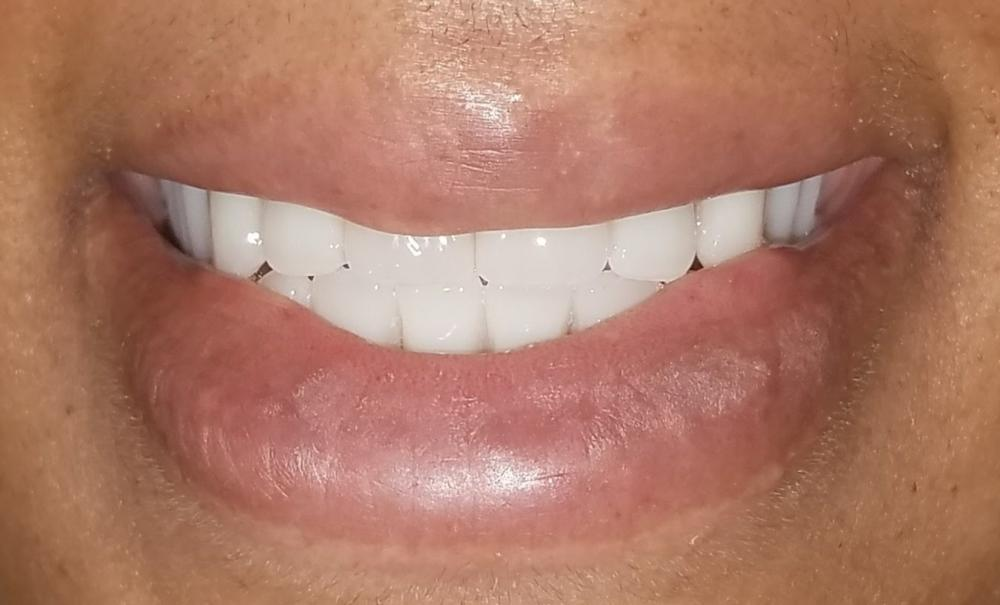 Patient Photo with new smile