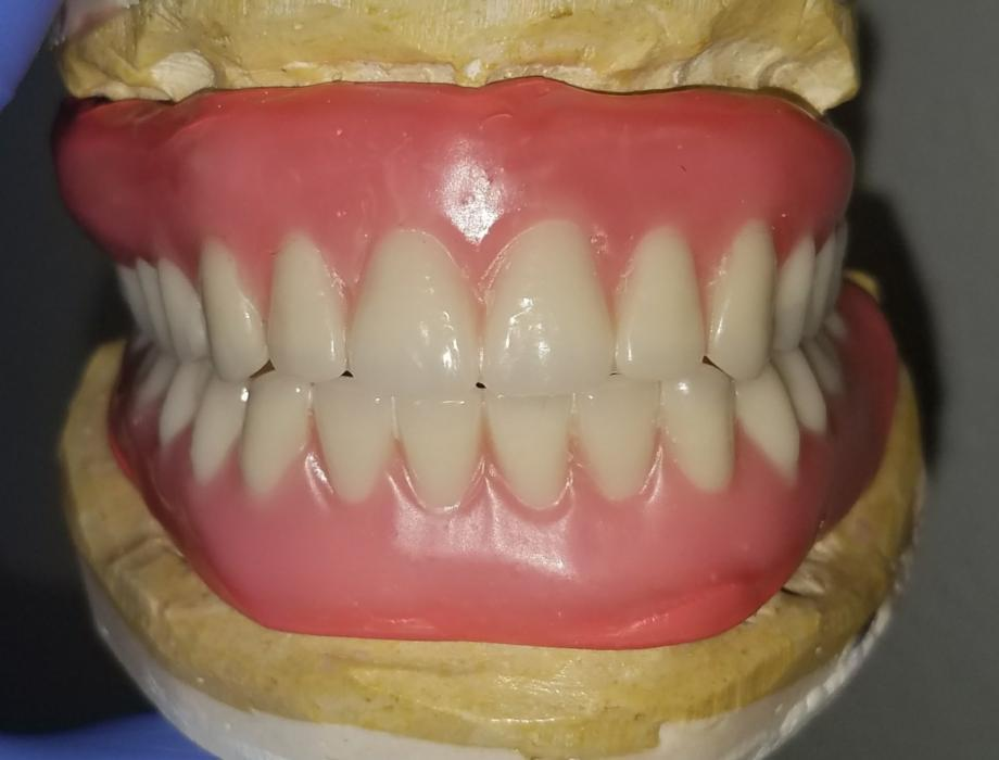 Trial Smile Denture