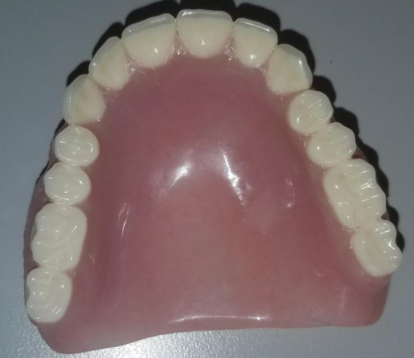 Top Denture from below view