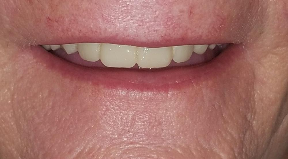 One Day Denture after