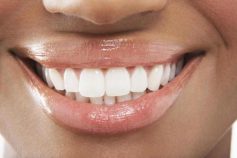 Close Up of Smile | Non-Invasive Esthetic Dentistry