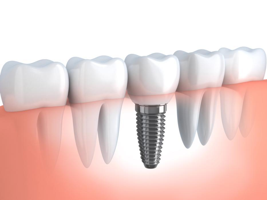 Diagram of dental implant | Gretna LA Dentist