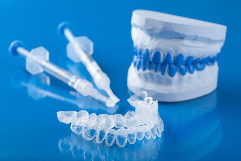 Teeth whitening kits | Dentist Gretna LA