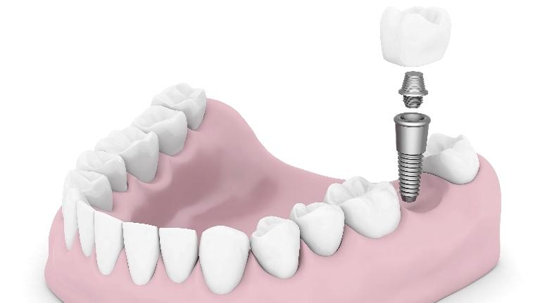 Dental implants in Gretna, LA