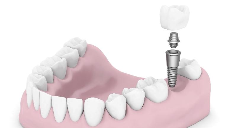 Dental Implant | Nola Dentures and General Dentistry