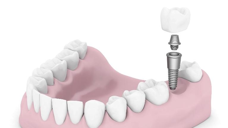 Dental Implants | Nola Dentures and General Dentistry