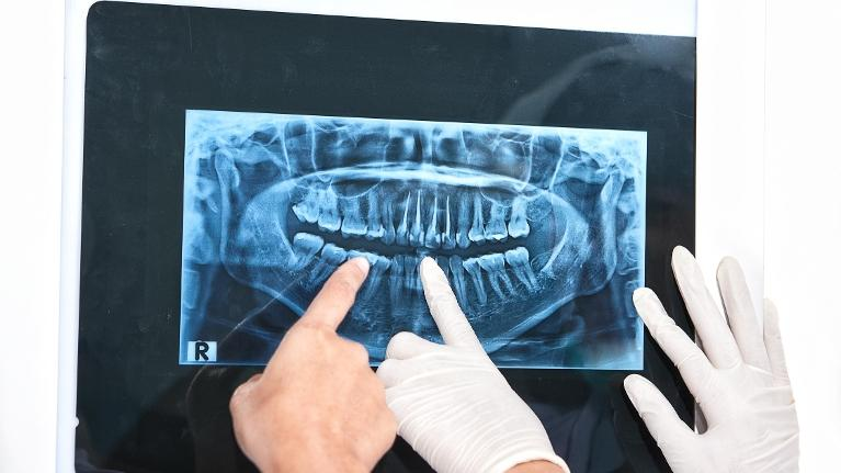 Dental XRays | NOLA Dentures and General Dentistry
