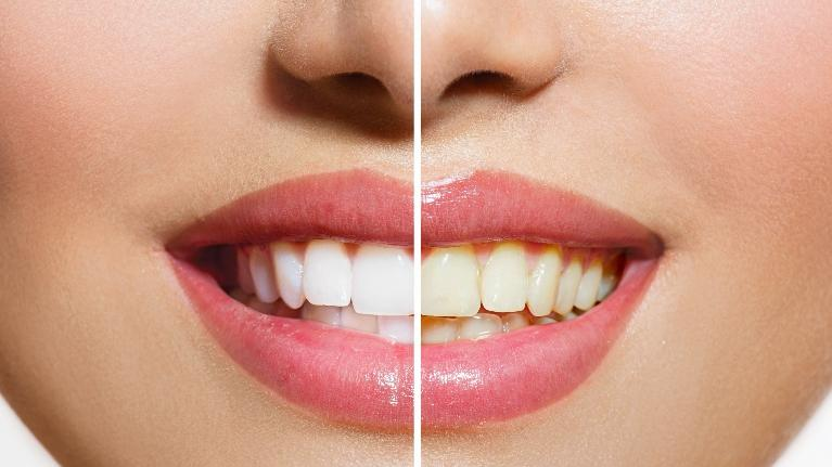 Teeth whitening | Gretna, LA
