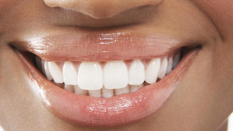 Close up of woman's smile | Dentist Gretna LA
