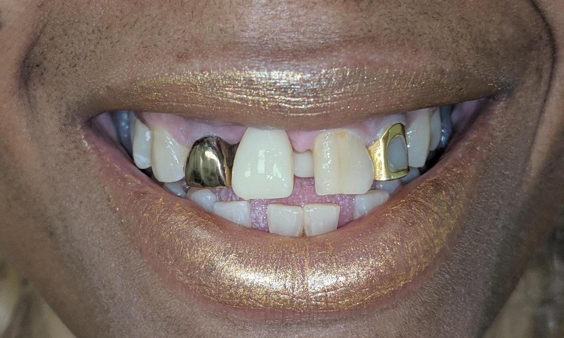 Replaced Front Tooth | New Orleans LA