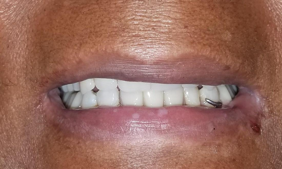 Patient after Full Denture | New Orleans