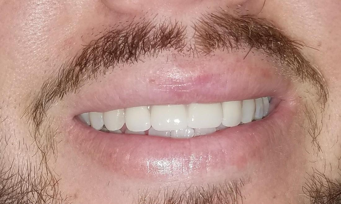 Patient after Partial Dentures | New Orleans