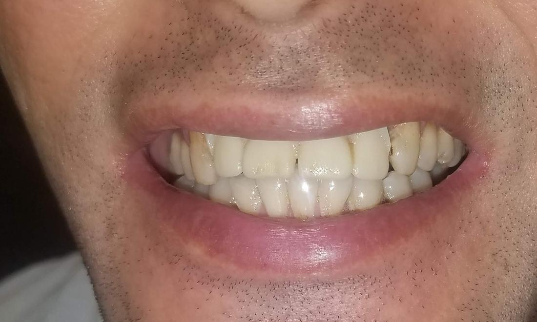 Gold Tooth Replacements | NOLA Dentures & General Dentistry