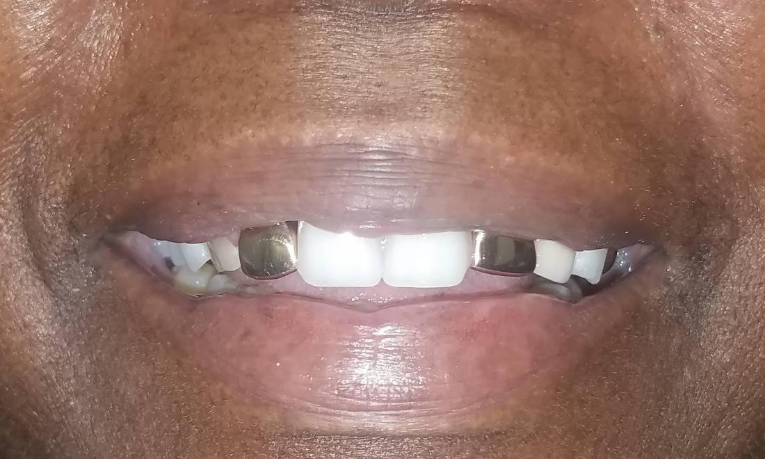 Restored Front Teeth New Orleans Dentist