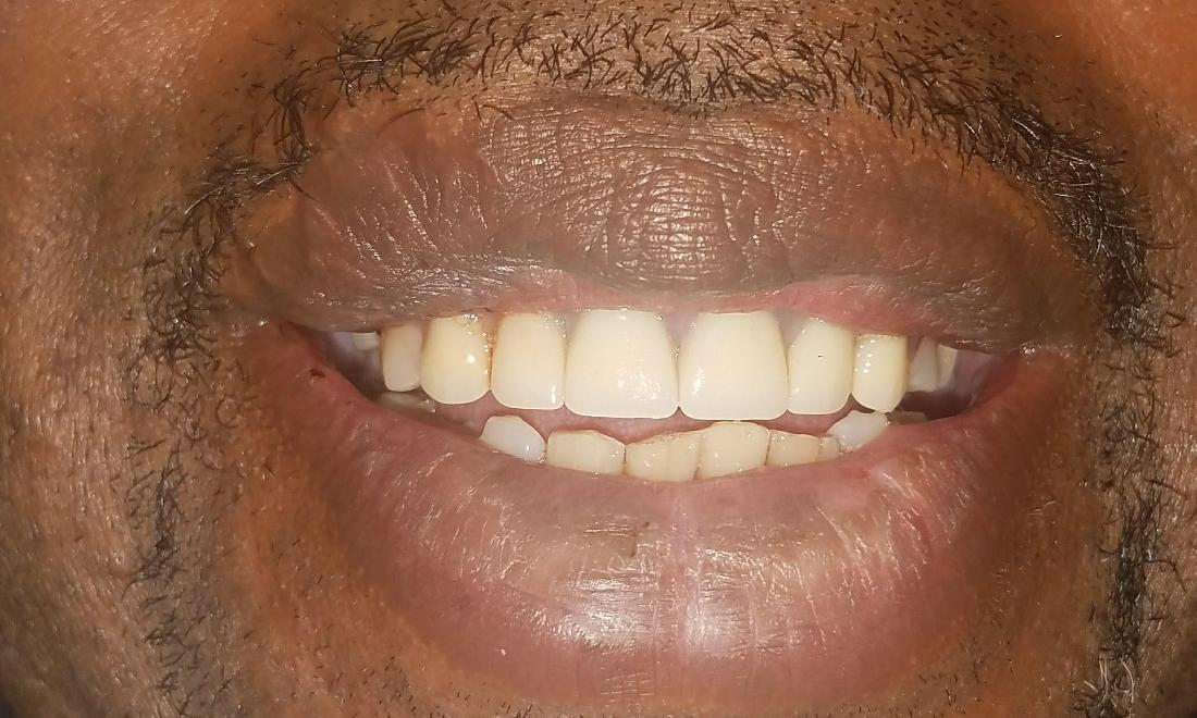 Patient after partial dentures New Orleans