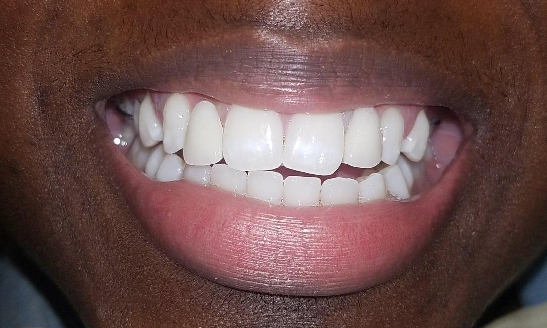Patient with replaced front teeth | Gretna LA