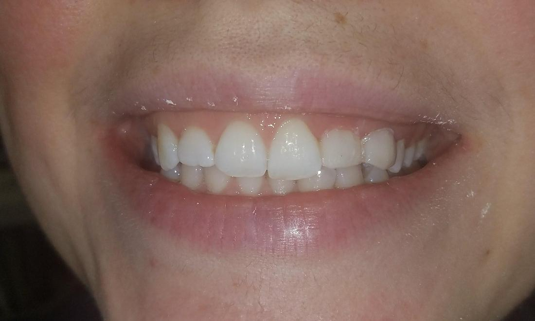 Reshaping and restoring ugly teeth