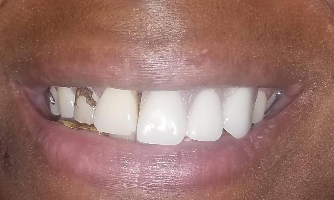 Restored Front Tooth New Orleans