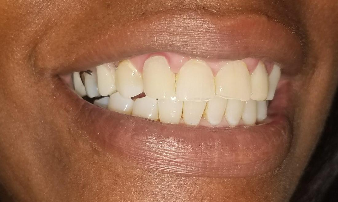 Patient before a partial denture | Gretna LA