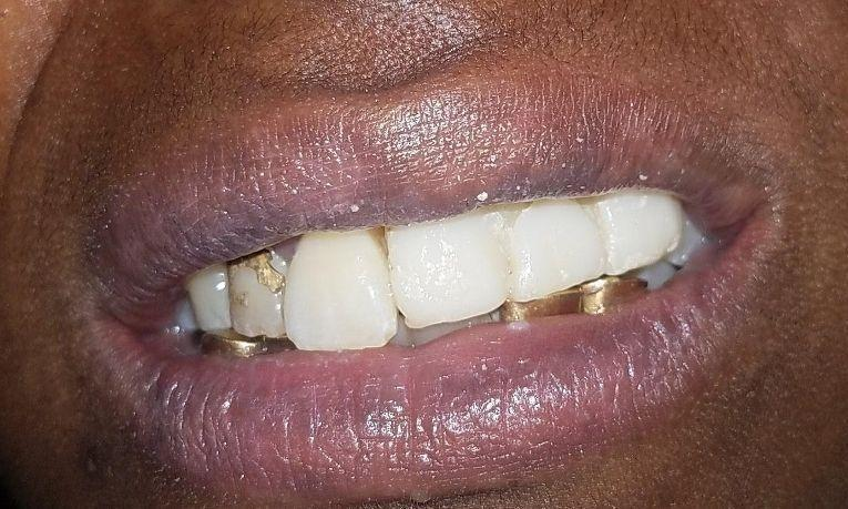 After partial dentures | Gretna LA Dentist