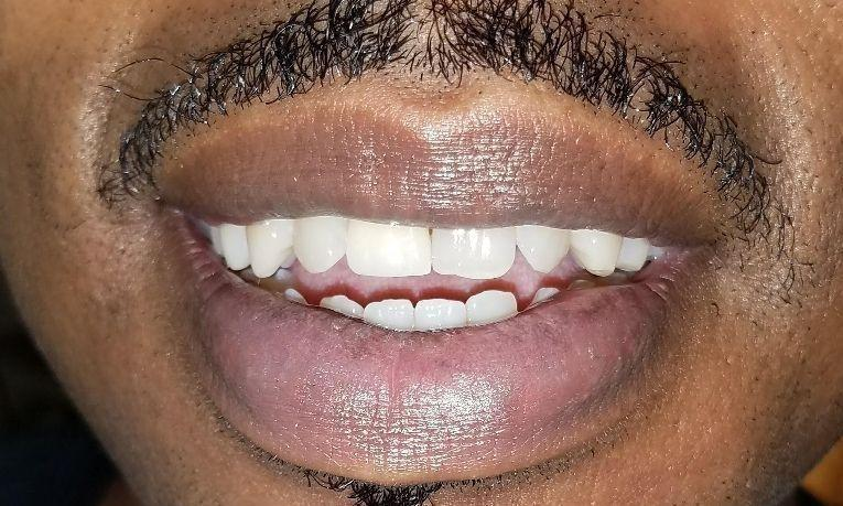 After new partial denture | Gretna LA Dentist