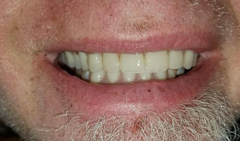After tooth replacement