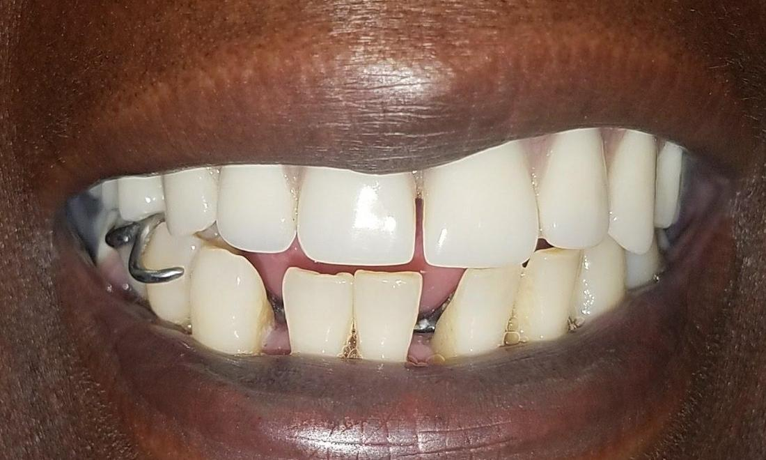 Patient with gap in teeth | New Orleans