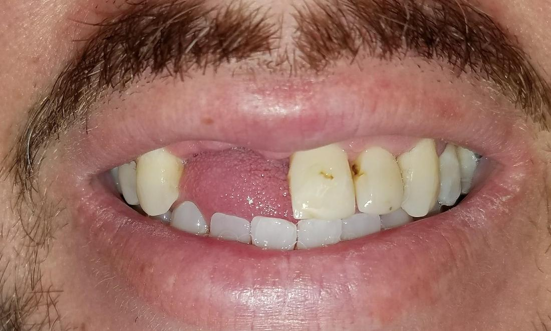 Patient before Partial Dentures | New Orleans