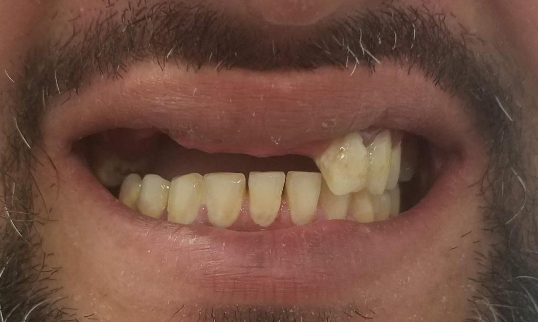 Broken Partial Denture | Gretna LA Dentist