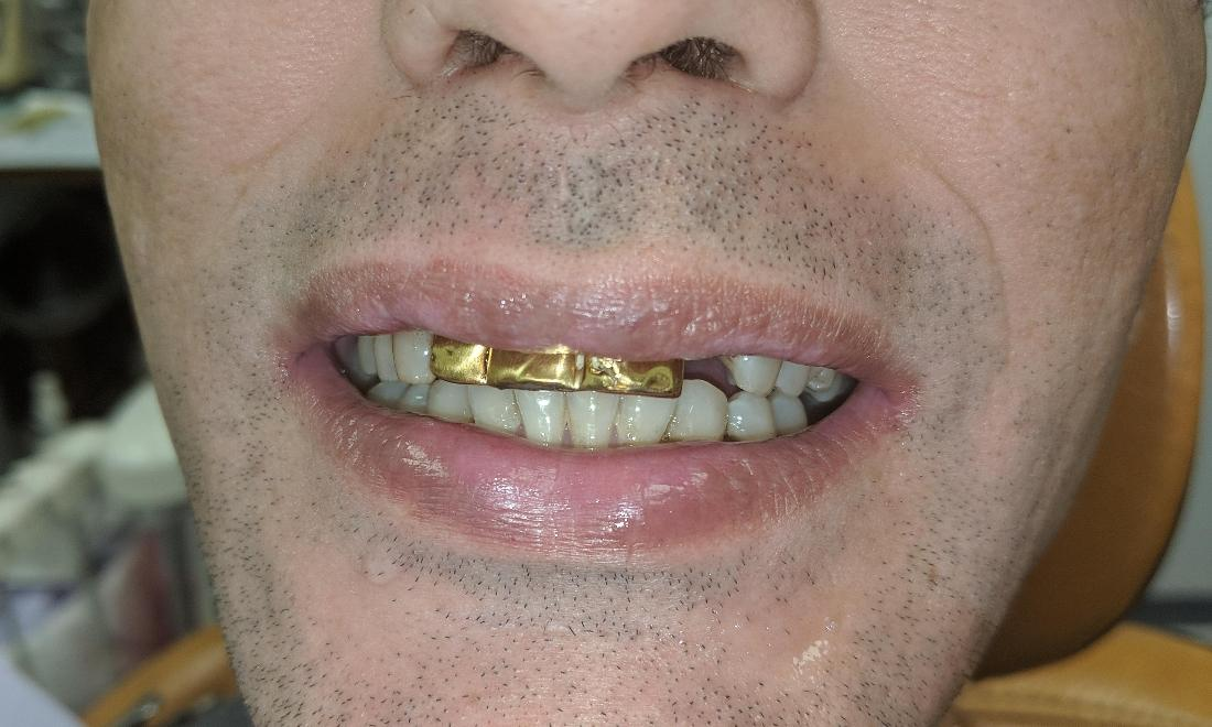 Patient with Gold Teeth | NOLA Dentures & General Dentistry