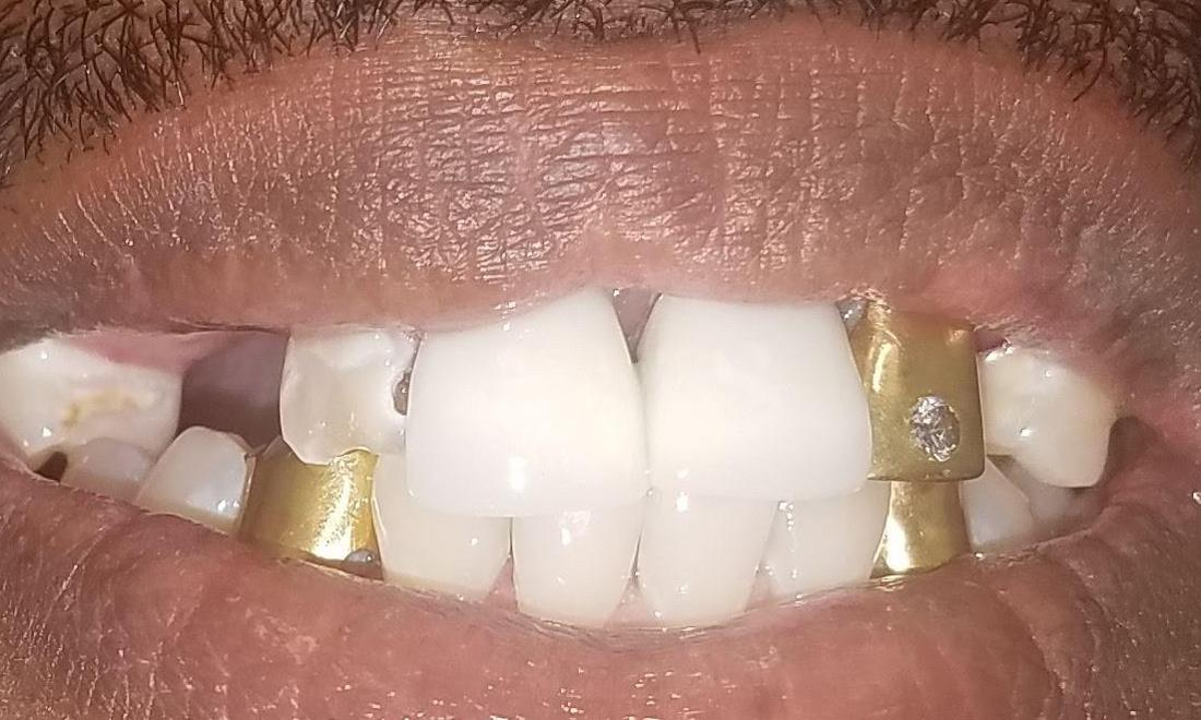 Patient Before Removing Old Golds | NOLA