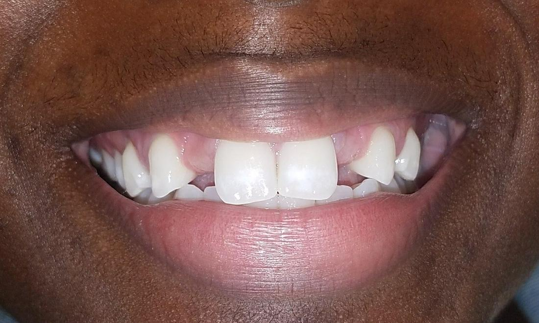 Patient with missing teeth | Gretna LA