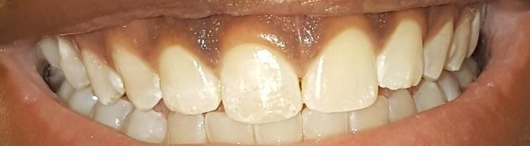 Fixing-a-front-chipped-tooth-After-Image