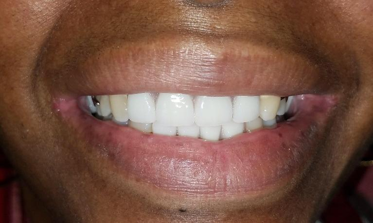Fixing-a-smile-and-saving-teeth-with-a-cast-partial-denture-After-Image