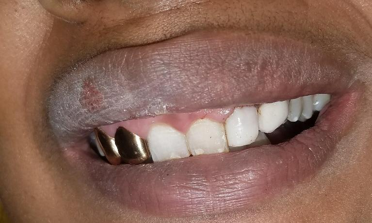 Fixing-broken-teeth-with-bonding-After-Image