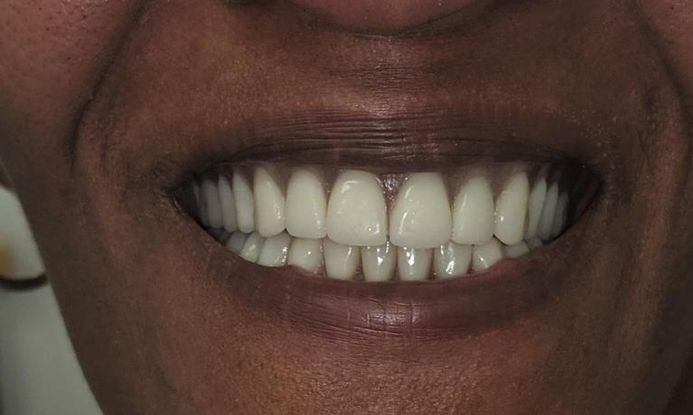 Implants-to-make-a-beautiful-smile-After-Image