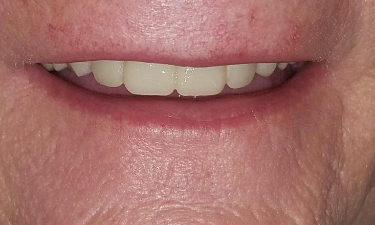 One-Day-Denture-saves-the-day-After-Image