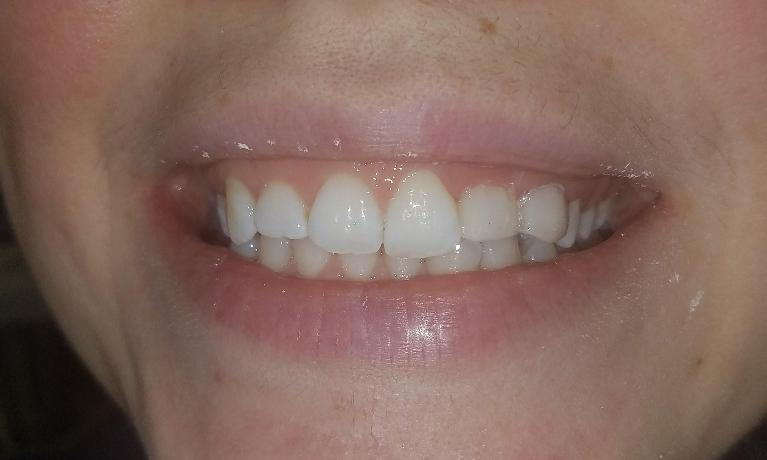 Reshaping-and-restoring-ugly-teeth-After-Image