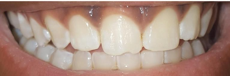 Fixing-a-front-chipped-tooth-Before-Image