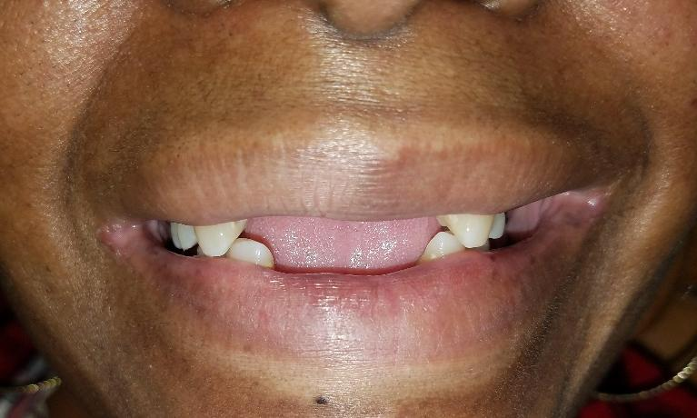 Fixing-a-smile-and-saving-teeth-with-a-cast-partial-denture-Before-Image