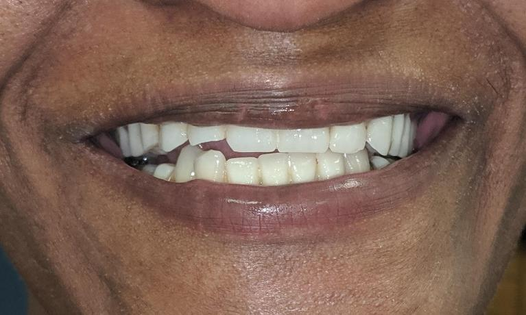 Implants-to-make-a-beautiful-smile-Before-Image