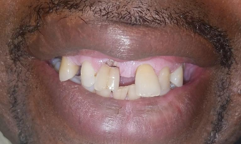 Quickly-fixing-a-Smile-with-Partial-Dentures-Before-Image