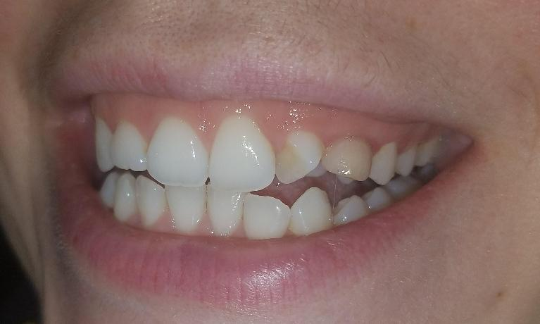 Reshaping-and-restoring-ugly-teeth-Before-Image